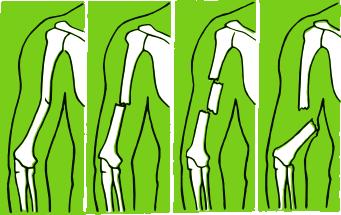 Различити преломи костију